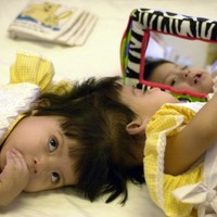 Formerly conjoined twins celebrate milestone 10th birthday