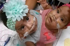 Conjoined twins successfully separated after 24 hour surgery