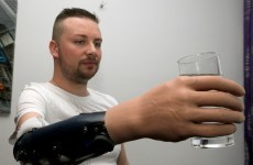 "Three men chose to have their arms ""amputated"" to get robotic replacements"