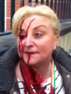 Woman left bloodied after gardaí attempt to move anti-water charge protesters
