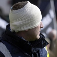 Head-butts, bites and a broken nose - but no jail time for garda attackers