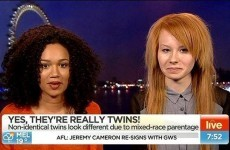 News anchor in hot water after congratulating mixed-race twin on her fair skin