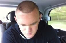 Rooney's team-mates think his hair transplant makes him a better player
