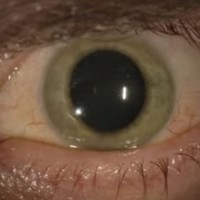 US man told he was free from Ebola - but then his blue eye turned green...