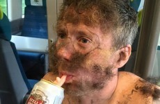 This man's mates glued their pubic hair to his face for a stag party
