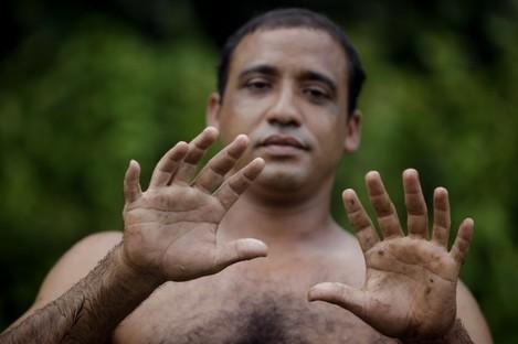 "Yoandri Hernandez Garrido, 37, known as ""Twenty-Four"" shows his 12 fingers in Baracoa, Guantanamo province, Cuba."