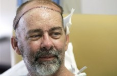 This man has just had the world's first skull transplant