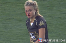 This rugby player played on despite a broken nose and captured the internet's heart