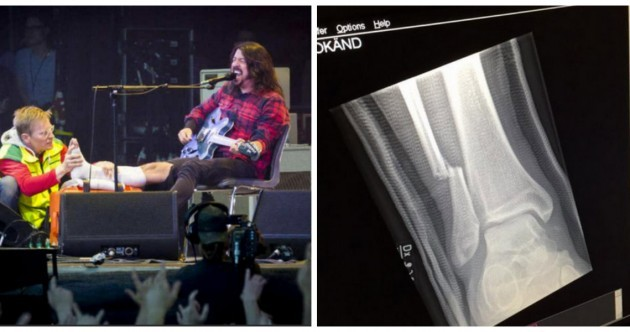 Dave Grohl fell off the stage last night, broke his leg, kept performing