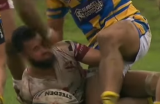 This rugby league player didn't take too kindly to being bitten
