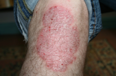 Do you suffer with psoriasis? A new drug treatment could offer you great news