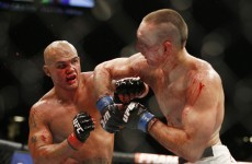 Rory MacDonald's face is seriously messed up after his epic UFC 189 rematch