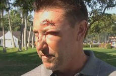 Former caddie claims Robert Allenby's Hawaii kidnapping story isn't true