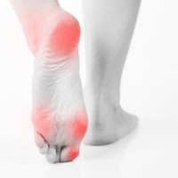 Do you get blisters on your feet when running? You should read this