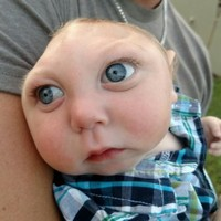 Miracle baby born with malformed brain has reached his first birthday