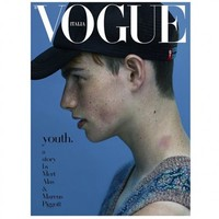 See this lad with the hickey on the cover of Italian Vogue? He's from Ennis