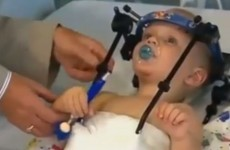 Toddler's head reattached after internal decapitation