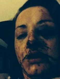 """It was quite a picture"": Woman knocked unconscious for two days by ex-partner"