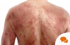 What Its Like To Live With Psoriasis foto