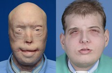 """There is hope"": This man just got the most extensive face transplant ever"