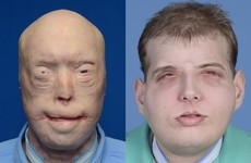'It isn't like Face/Off': The surgeon who performed this extreme face transplant explains how he did it