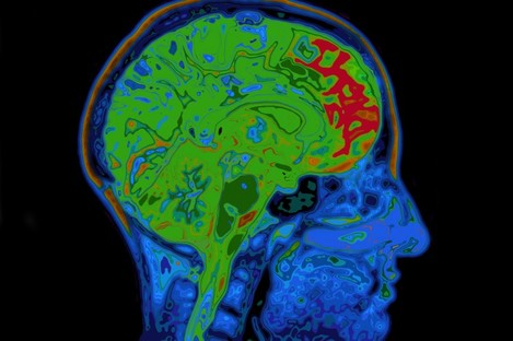 GE Healthcare specialises in a dye used for MRI scans.