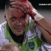 James Coughlan spills blood as Pau claim draw with Racing