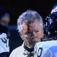 Definitive proof -- if it were needed -- that headbutting someone wearing a helmet is a bad idea