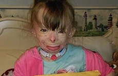 This little girl who lost her whole family in a fire only wants cards for Christmas