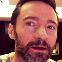 Hugh Jackman tells people to wear sunscreen after another skin cancer surgery