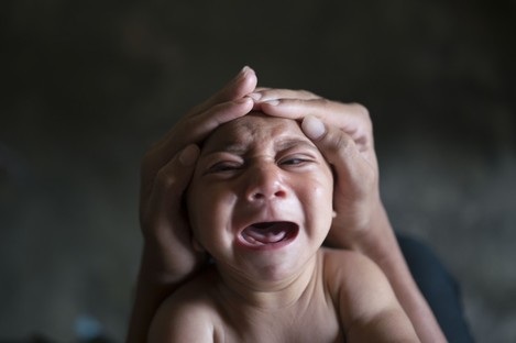 A child born with Microcephaly in Brazil pictured last month