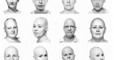 These women with alopecia were captured beautifully by a Dublin photographer