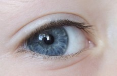 Doctor claims he can turn your brown eyes blue