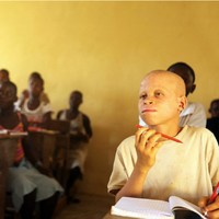 "Malawi albinos face ""extinction"" if they continue to be murdered for their body parts"
