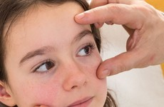 Eye exams for schoolchildren have been cut by the HSE
