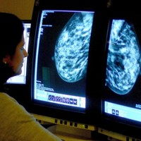 Mammograms not as effective at detecting cancer as previously thought, says study