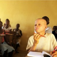 Malawi court bans witchdoctors following spate of albino killings