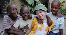 Ukerewe: A haven for albinos in a country where they're murdered for their body parts