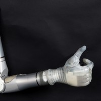 A decade on, Segway creator's prosthetic arm will arrive at the end of the year