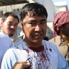 At least 80 people have been killed in Kabul bombing
