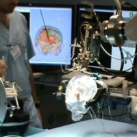 EU-funded researchers make breakthrough on robotic brain surgery