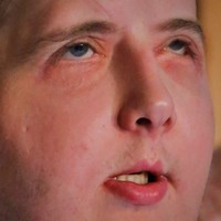 US firefighter can drive and swim again one year after face transplant