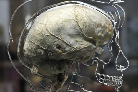 A real human brain suspended in liquid with a to-scale skeleton, central nervous system and human silhouette carved into acrylic, inside the @Bristol science attraction