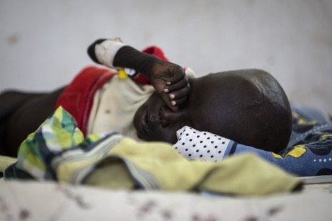 A sick child lies in a bed in a UNICEF supported hospital in Juba, South Sudan