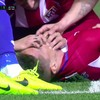 Gabi bitten by Torres as Deportivo doctor praises Atletico duo for quick-thinking