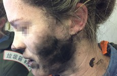 Woman's face is burned after battery-operated headphones catch fire on airplane