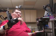 Groundbreaking science allows paralysed man use his brain to control his arms again