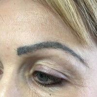 Warning about poorly trained eyebrow technicians leaving clients with scars