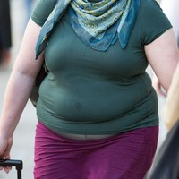 Obesity 'epidemic' affects one in 10 people worldwide - study