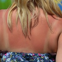 Poll: Are you sunburnt?